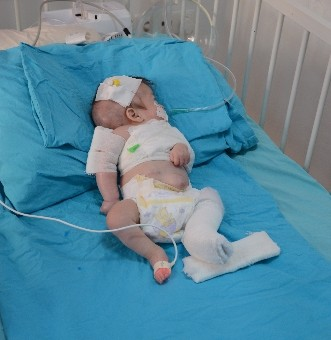 Annesi tarafından darp edilen bebeğin tedavisi sürüyor