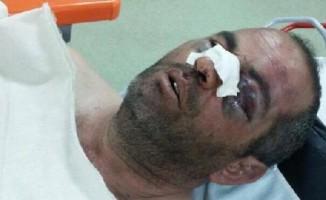 Öğretmeni Döven Polislere 2'şer Bin TL Ceza